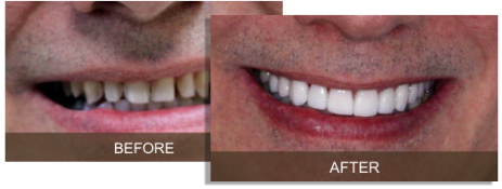 Briter Dental Before and After Gallery Katy, Texas