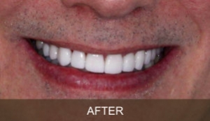 Briter Dental-Katy, Texas- Before and After 1b