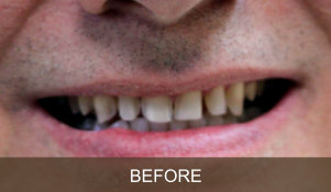 Briter Dental-Katy, Texas- Before and After 1