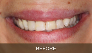 Briter Dental-Katy, Texas- Before and After 2a