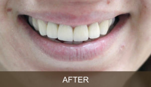 Briter Dental-Katy, Texas- Before and After 2b