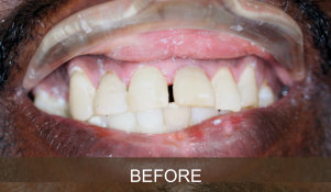 Briter Dental-Katy, Texas- Before and After 3a