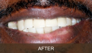 Briter Dental-Katy, Texas- Before and After 3b