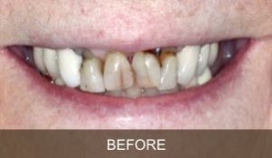 Briter Dental-Katy, Texas- Before and After 4a