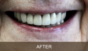 Briter Dental-Katy, Texas- Before and After 4b