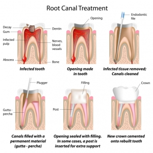 Getting Past Fake News about Root Canals