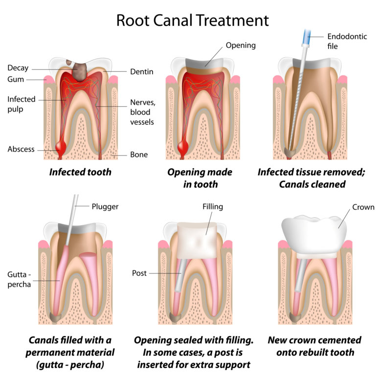 Root Canal Treatment | Briter Dental