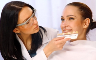 Houston Dental Veneers