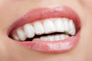 Invisalign - BriterDental Houston