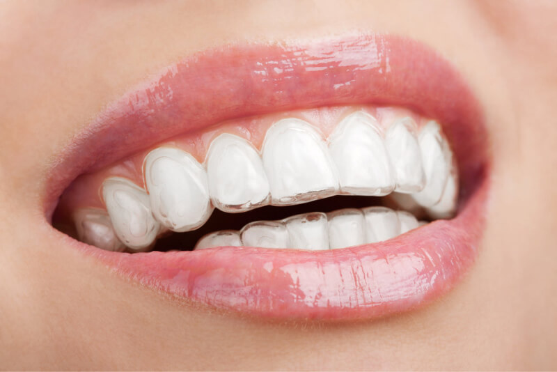Invisalign-Houston