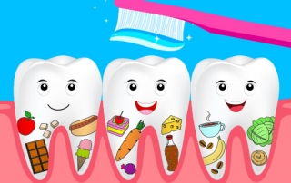 Food and Damages to Teeth | Briter Dental Houston